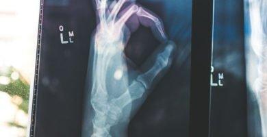 osteoporosis-en-ancianos